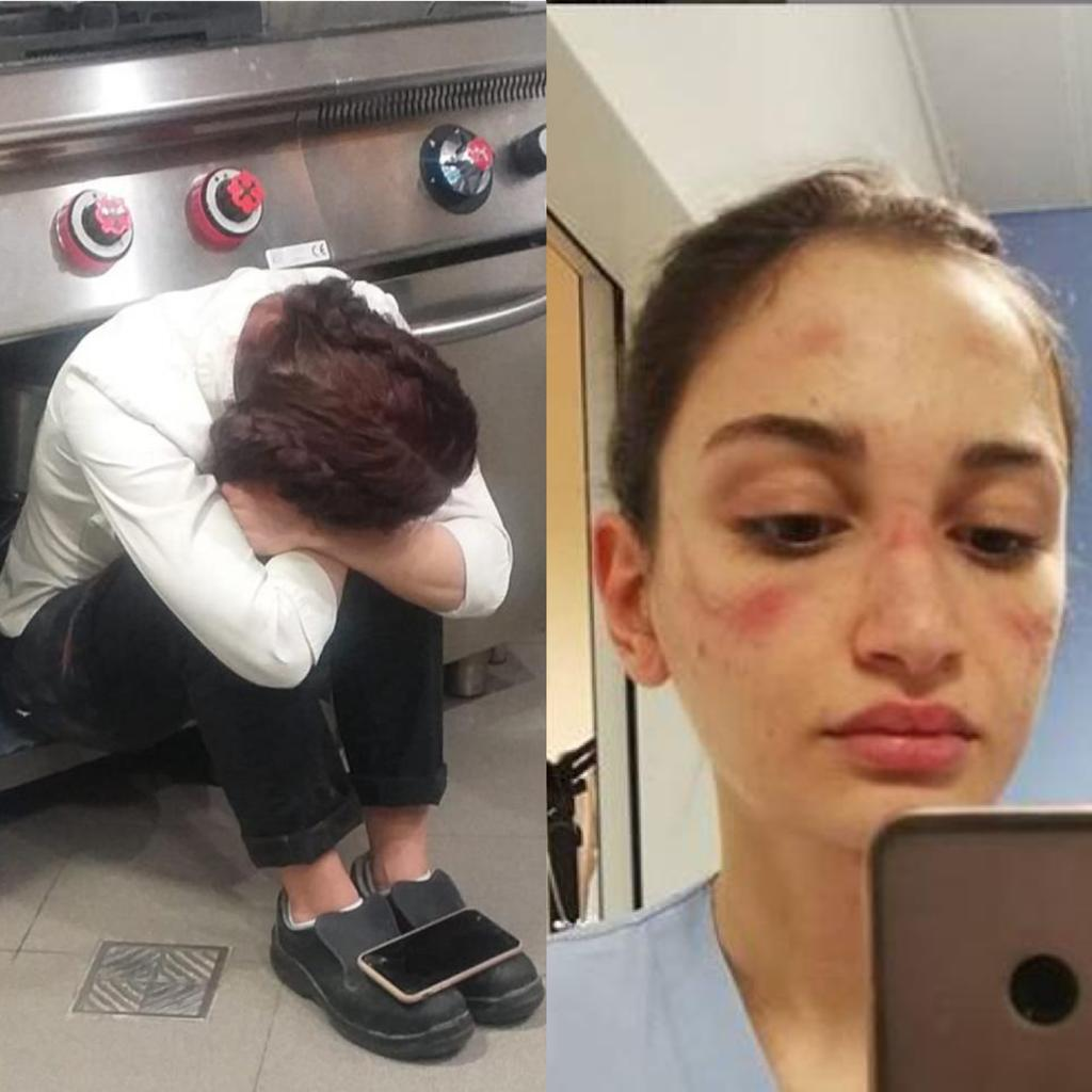 """Camilla Moccia e la foto che ha fatto il giro del web: """"Mostrarsi deboli è un segnale di forza"""""""
